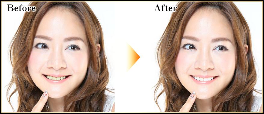 歯の色による見た目の印象の比較