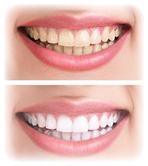 黄色の歯と白い歯